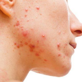 rimedi-naturali-acne